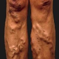 Krémy, gély, balzamy na žily, cievy a nohy